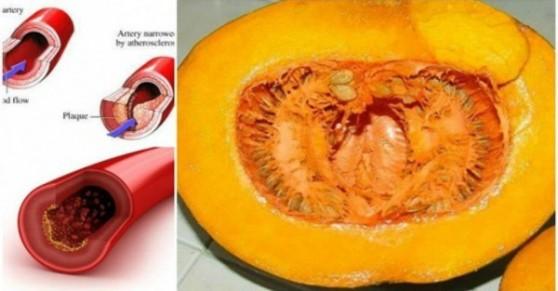 Բնական և ստուգված միջոց՝արյան մեջ խոլեստերինի, լիպիդների ու տրիգլիցերիդների մակարդակը նվազեցնելու համար
