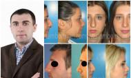 Ինչ արժե Հայաստանում քթի պլաստիկ վիրահատությունը, ովքեր և ինչու են դիմում. զրույց վիրաբույժ Հովհաննես Ստամբոլցյանի հետ