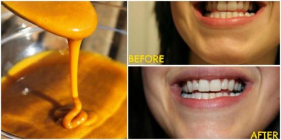 Ատամների ճերմակեցում՝ քրքումի օգնությամբ (տեսանյութ)
